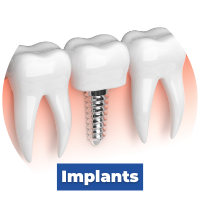 Implant Services Lipkowitz Dental