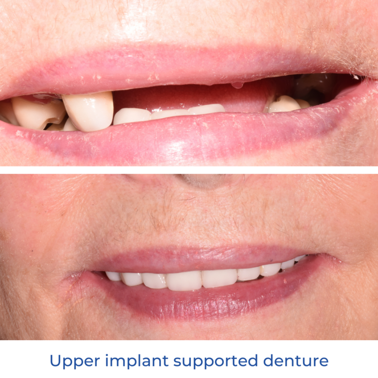 Lipkowitz Dental Associates Gloucester Before and After