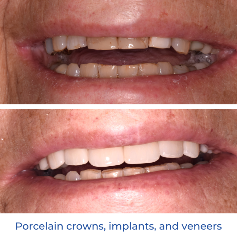 Smile Makeover Dr Lipkowitz Cosmetic Dentistry